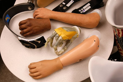 Advancements of Prosthetic Limbs