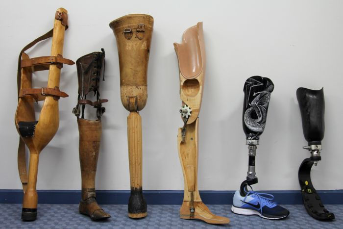 Advancements+of+Prosthetic+Limbs